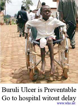 buruli_who_campaign